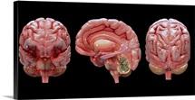 3D rendering of human brain