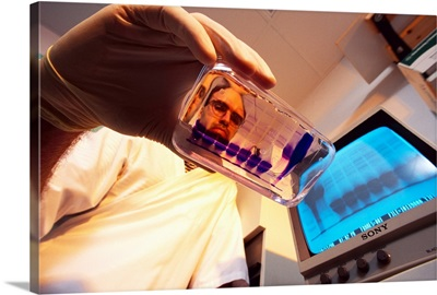 A researcher in a laboratory studies bands of protein in an electrophoresis gel tray
