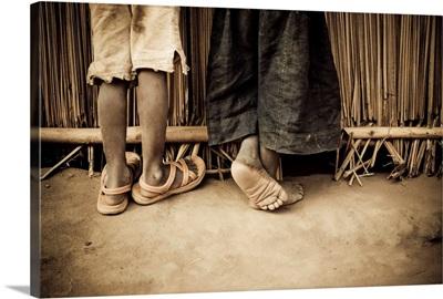 Close-Up Of Legs, Gulu, Northern Uganda