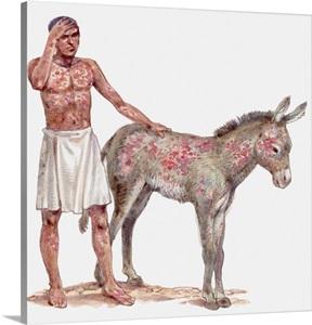 Illustration Of God S Sixth Plague Inflicting Boils On Man