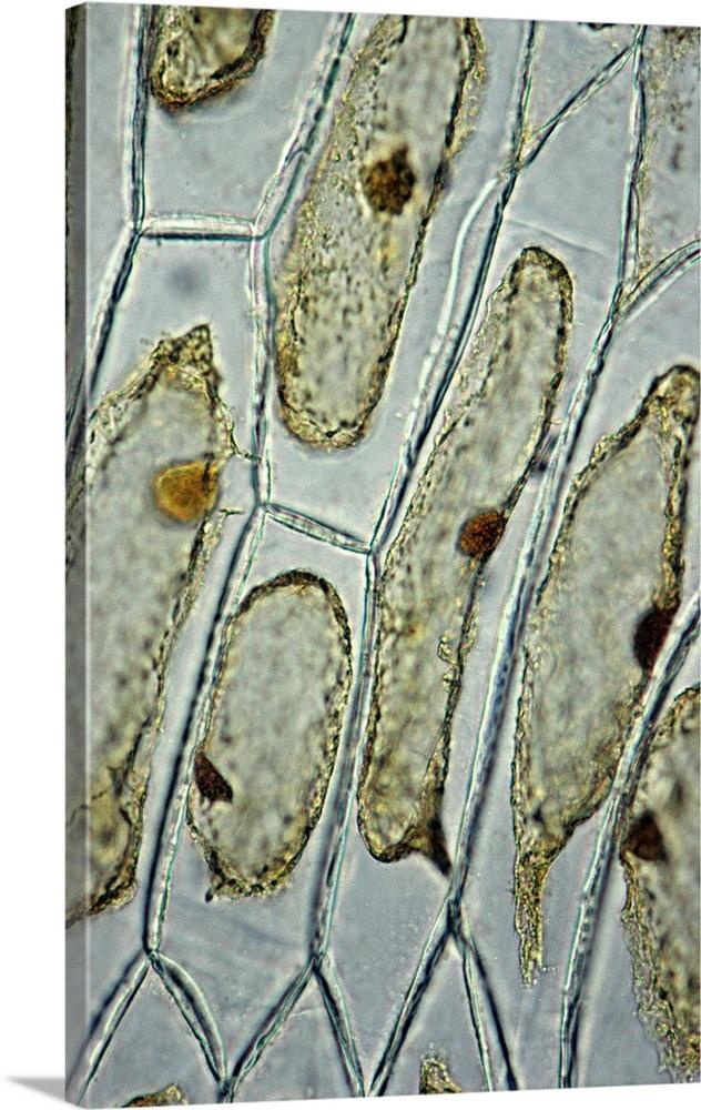 Plasmolysis  Onion Cells  Epidermis  Hypertonic Solution Wall Art  Canvas Prints  Framed Prints
