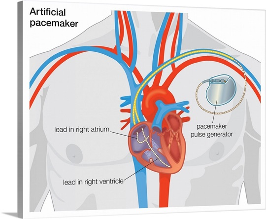 Diagram Of Normal Heart Valve Compared To Artificial Heart Valve