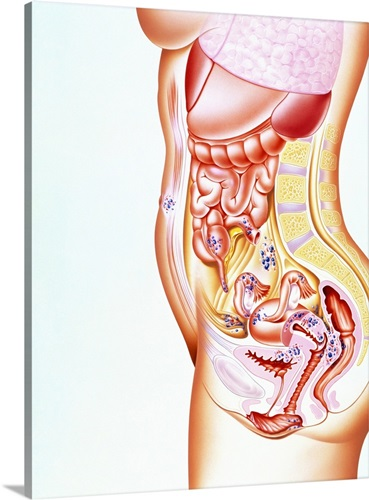 Artwork Showing Sites Of Endometriosis In Body Wall Art Canvas