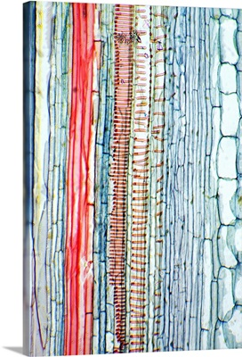 Castor oil stem, light micrograph