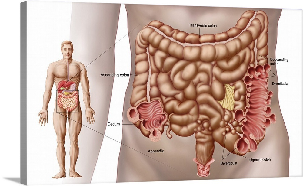 Diverticulitis In The Descending Colon Region Of The Human Intestine