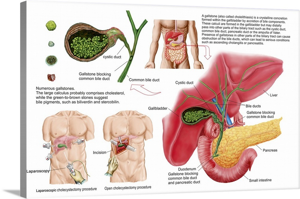 Illustration Depicting Cholecystectomy The Surgical Removal Of The